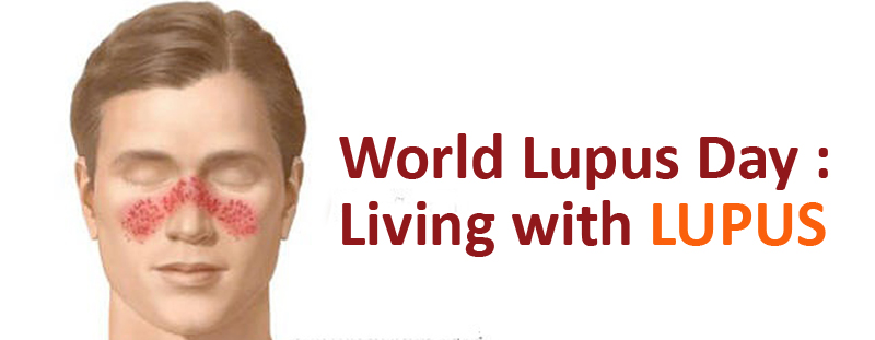 World Lupus Day : Living with LUPUS